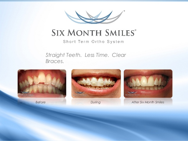 6-month-smile-3