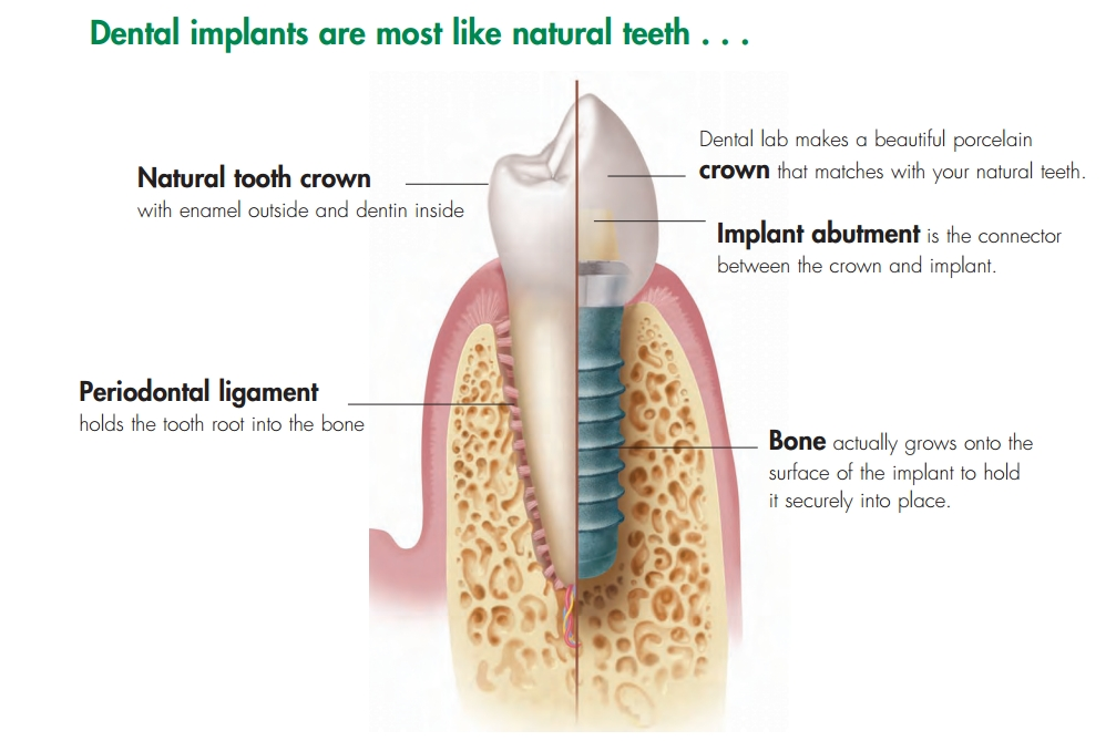 dental-implants-like-nature-teeth