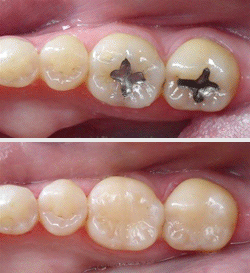 filling-before-after